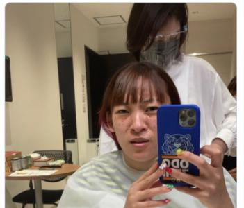 【速報】フワちゃん、シミ取りレーザー直後「仕事ないと思ったのに顔中シミだらけで3本撮りしたサイアクぅ〜!」